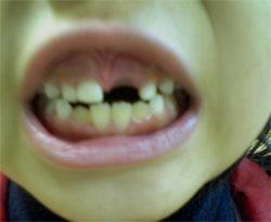 娘の乳歯5本目