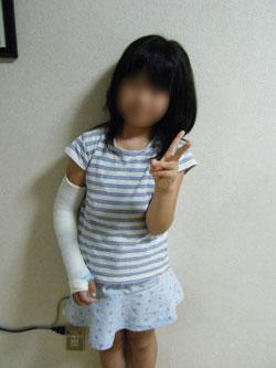 2年前の娘の骨折