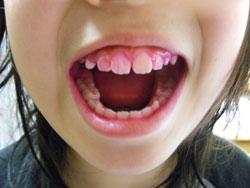 歯のカラーテスト