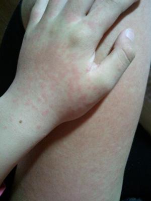 溶連菌&中耳炎&アレルギーと戦う地獄の10日間